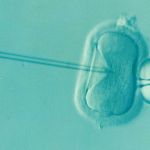 извличане на яйцеклетка